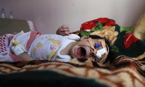 1.8 million Yemeni children malnourished, vulnerable to diseases: UNICEF