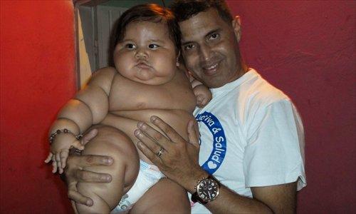 20 Kilo 8 Month Old Put On Urgent Diet Global Times