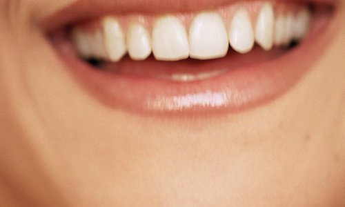 Cost of dental implants hard to swallow for Chinese patients