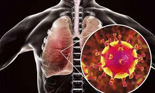 new virus identified as cause of wuhan pneumonia