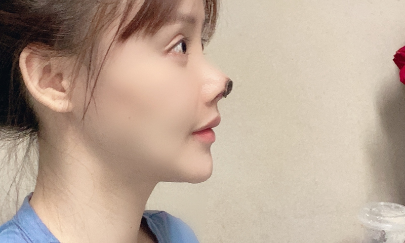Photo of Chinese actress's necrotic nose Photo: Sina Weibo