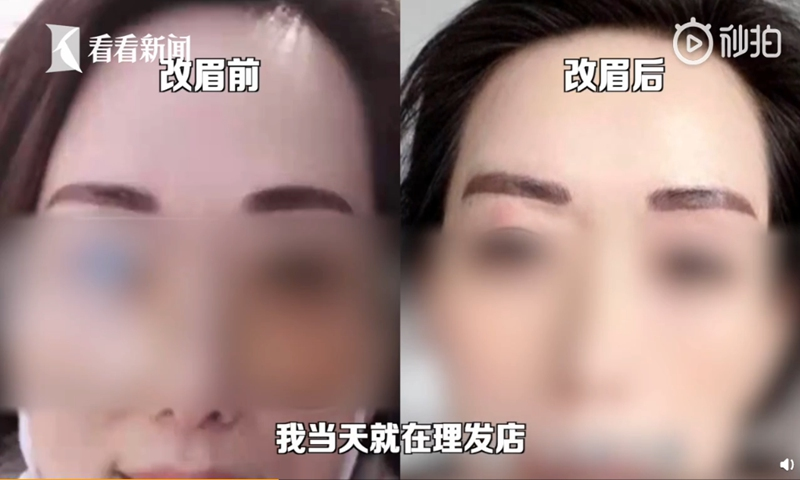 A woman in Hangzhou, East China's Zhejiang Province, recently underwent an expensive eyebrow tattoo surgery which, instead of bringing her good looks and good luck, ended up looking like two Chinese broadswords. Photo: screenshot of Kankan News on Sina Weibo.