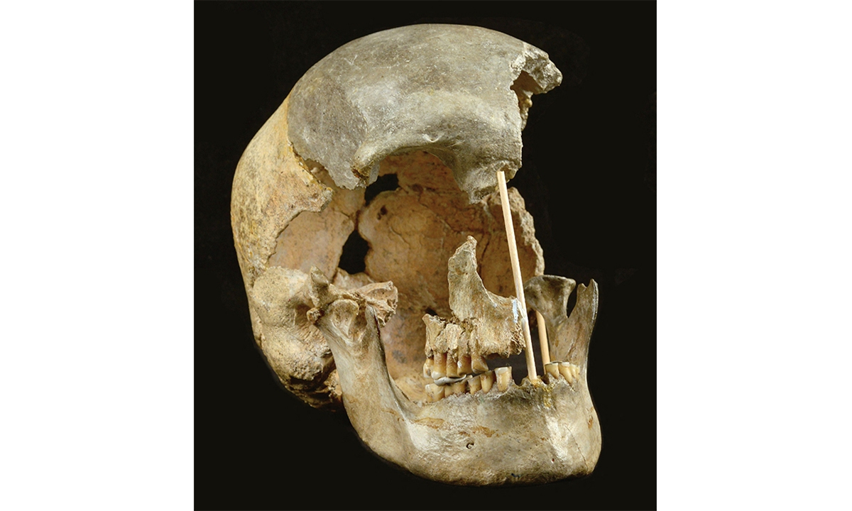 The skull of a modern human female individual from Zlaty kun on April 7, 2021. Genetic sequencing of human remains dating back 45,000 years has revealed a previously unknown migration into Europe and showed intermixing with Neanderthals in that period was more common than previously thought. Photo: VCG