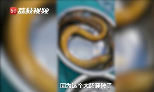 Eel Photo: Screenshot of a video posted by Lizhi Video