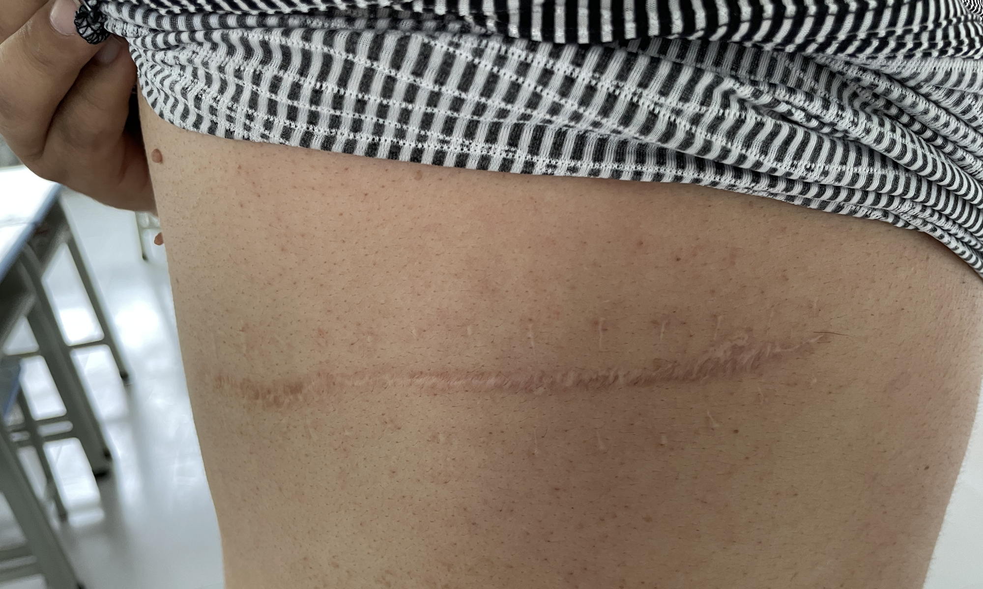 The scar left on Nurmemet back and ribs.